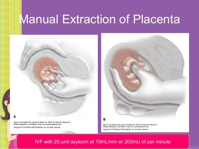 manual removal of placenta slideshare