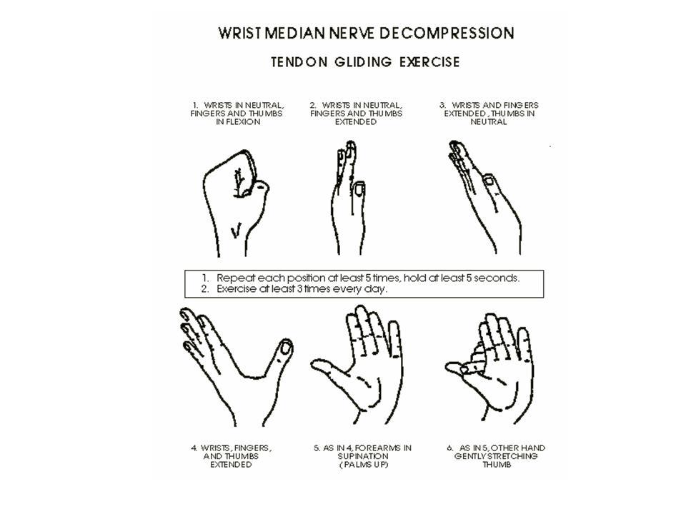 Median nerve glide exercises pdf