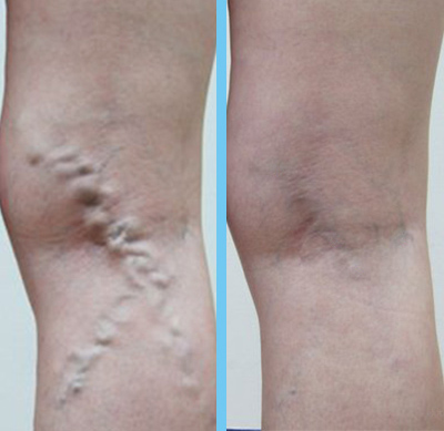 What is ultrasound guided foam sclerotherapy